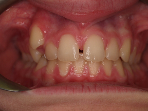 how to close a big gap without braces