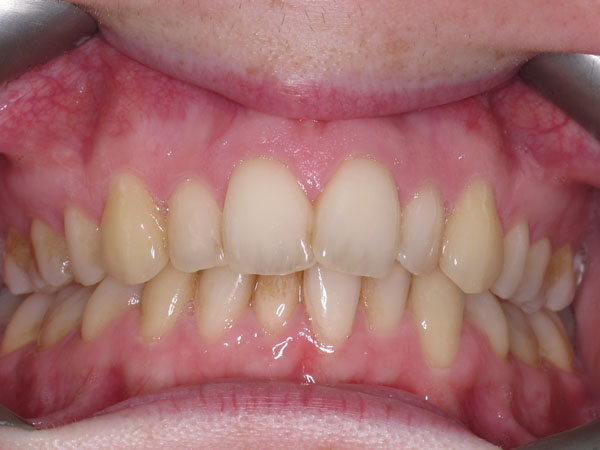 Before & After Gallery   Kingston Orthodontics   we create